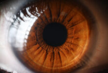 Photo of Your Eyes May Signal Your Risk for Stroke, Dementia